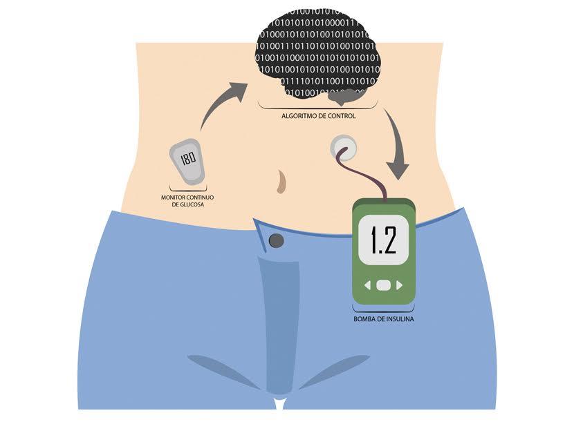 ¿Qué es el páncreas artificial?