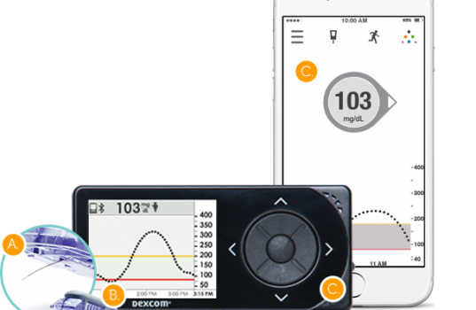 Breves – Dexcom G5 Mobile ya disponible en Android