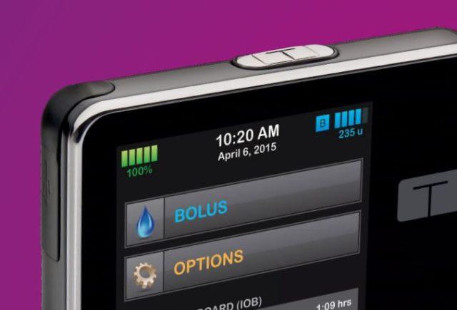 Breves – Nueva bomba de insulina con monitor de glucosa integrado t:slim X2 y Dexcom G5