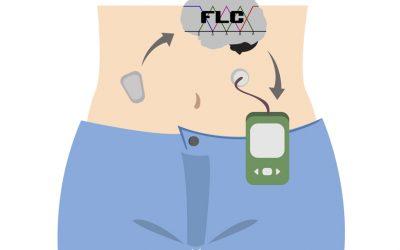 ¿Cómo controla la glucosa un páncreas artificial?: la lógica difusa