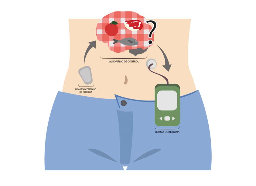 Páncreas artificial híbrido: ¡A comer!