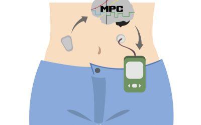 ¿Cómo controla la glucosa un páncreas artificial?: el algoritmo MPC