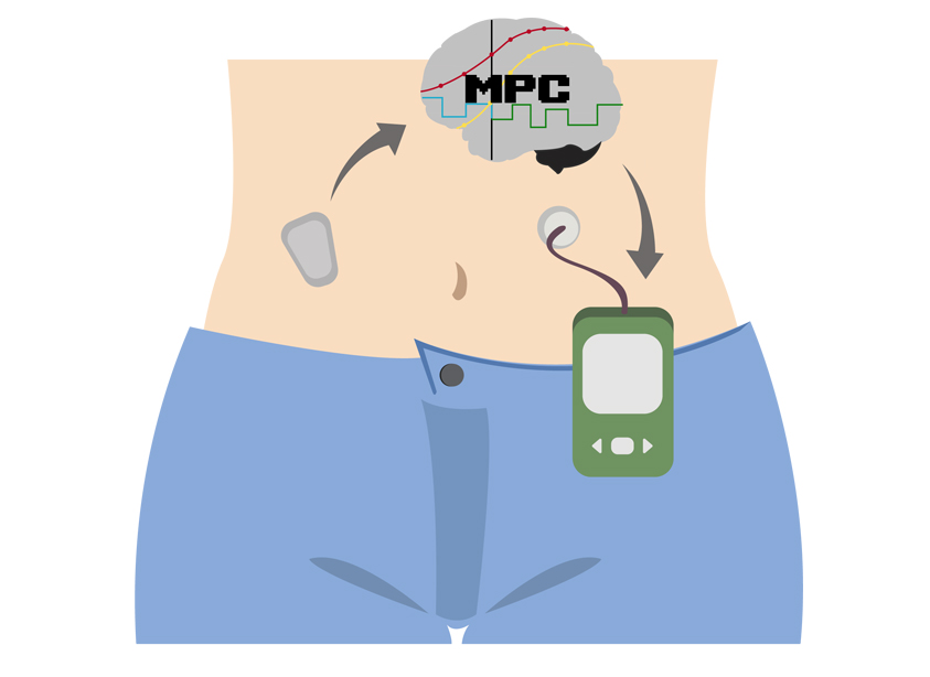 pancreas-artificial-mpc